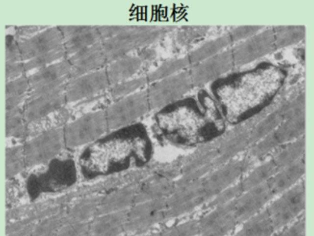 羊肉组织细胞中细胞器的透射电镜(TEM)观察